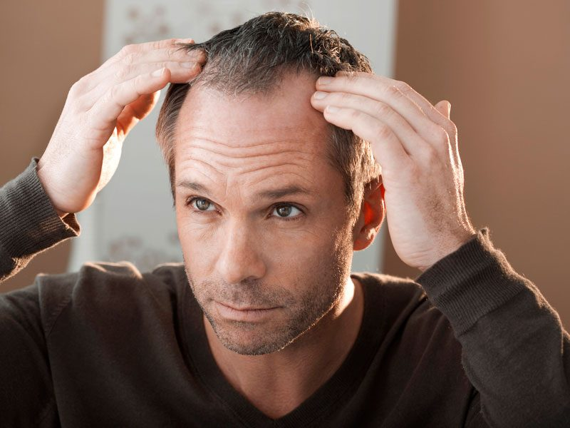 How to stop hair loss to keep from going bald