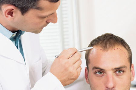 doctor outlining hair loss on man's head