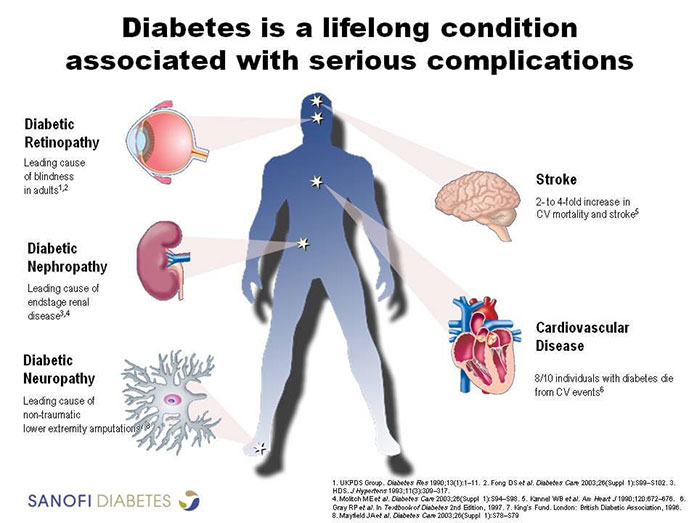 Graphic Illustrating The Many Complications Of Diabetes