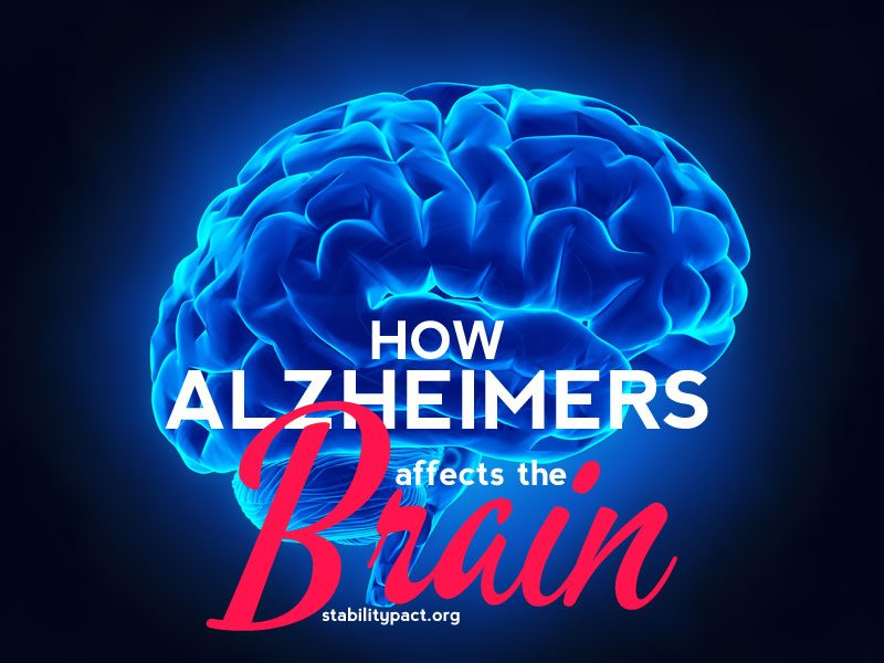 Here's how Alzheimers affects the brain as the condition progresses.